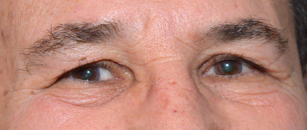 עיניו של טל ברודי